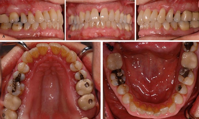23 Chronic Periodontitis