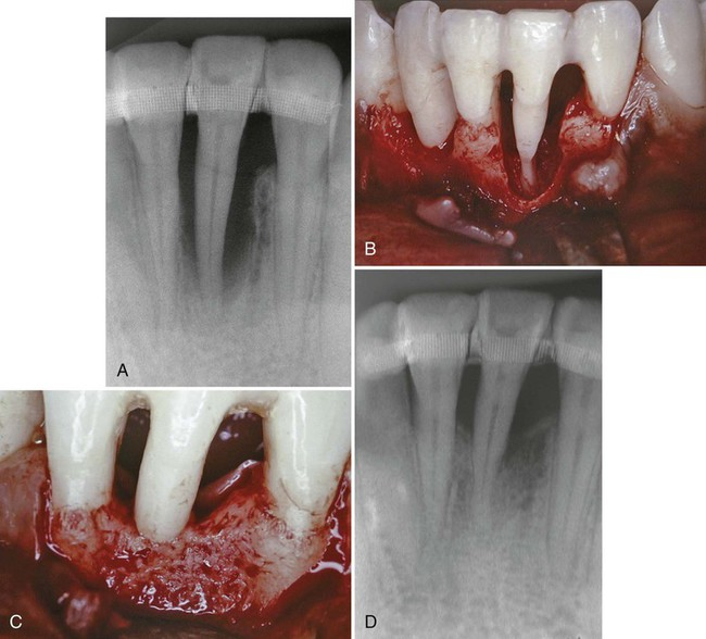 Periodontal Therapy Clinical Approaches and Evidence of Success