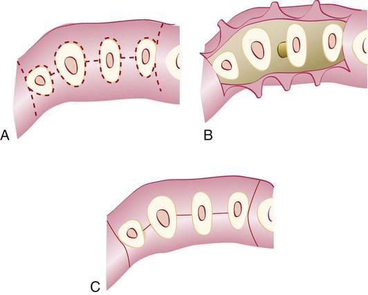 57 The Periodontal Flap Pocket Dentistry