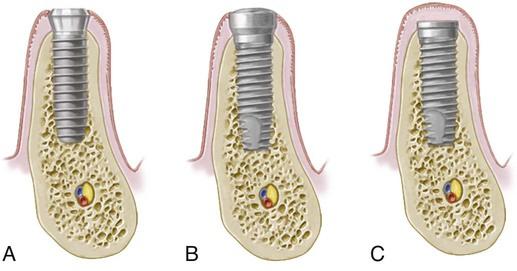 75 Basic Implant Surgical Procedures Pocket Dentistry