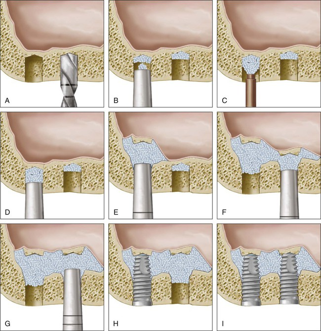 Sinus Floor Elevation Using Osteotomes : Advanced implant surgical procedures pocket dentistry