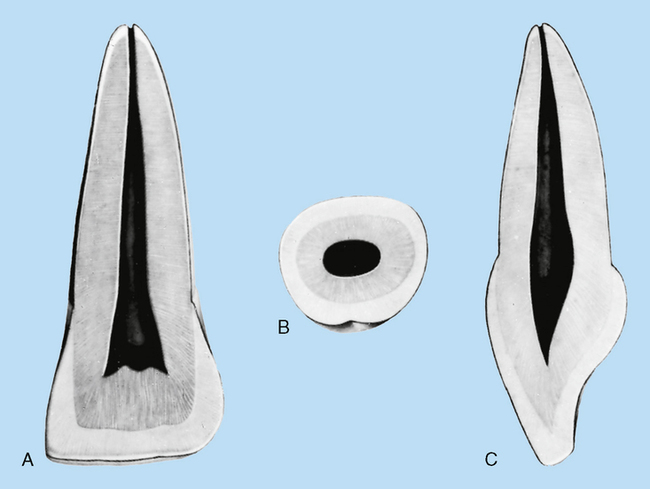 12 Incisors Pocket Dentistry