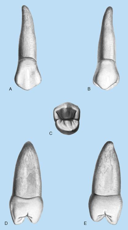 14 Premolars Pocket Dentistry