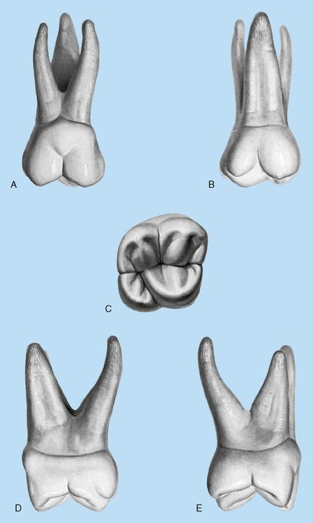 15: Molars | Pocket Dentistry