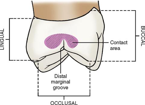 15 Molars Pocket Dentistry