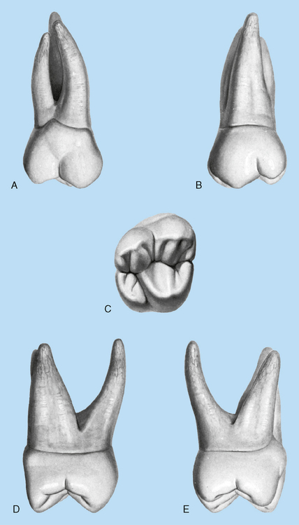 159 a maxillary right second molar a buccal view b lingual view c occlusal view d mesial view e distal view modified from zeisz rc