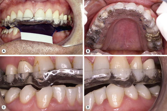 6 Occlusion Pocket Dentistry