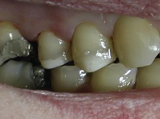 12 Inlays Onlays And Veneers Pocket Dentistry