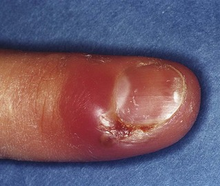 Herpetic Whitlow - Pictures, Treatment, Contagious, Symptoms