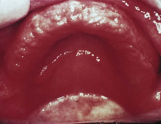35: Oral mucosal and salivary gland infections | Pocket ...