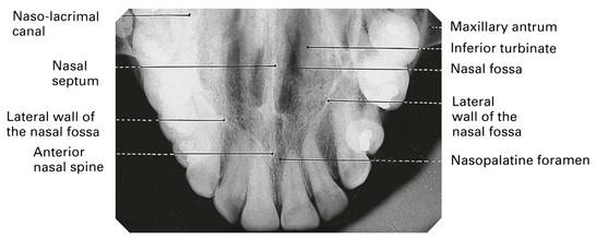 9 Occlusal Radiography Pocket Dentistry