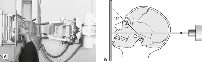 13: Skull and maxillofacial radiography | Pocket Dentistry