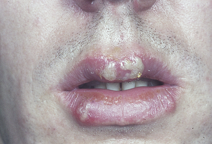 Intraoral recurrent herpes clinical features in immunocompetent patient 2