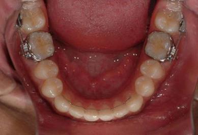 bilateral fusion of mandibular second molars 3 nunes e, de moraes ig, de novaes pm, de sousa sm:bilateral fusion of mandibular second molars with supernumerary teeth: case report brazilian dental.