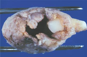 Adenomatoid Odontogenic Tumor Gross 15: Odontogenic Cysts ...