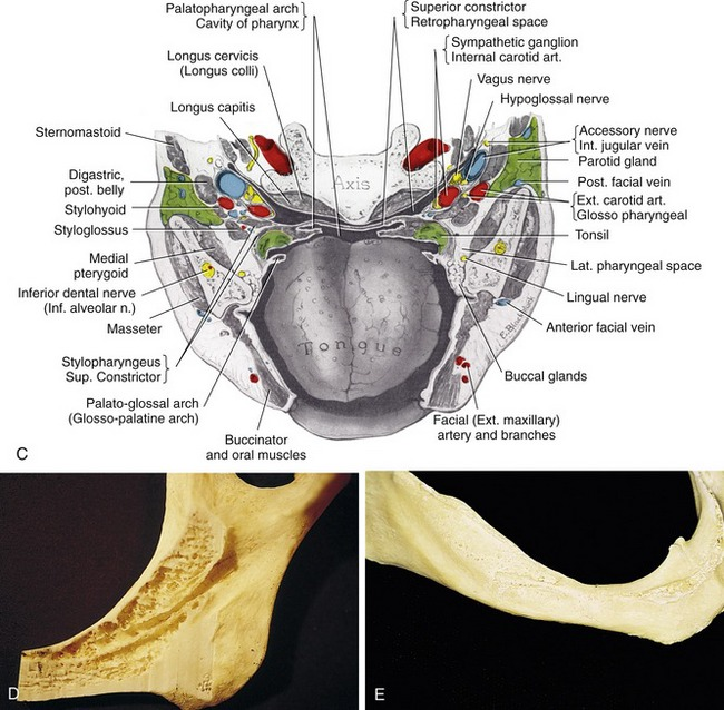 14: INFERIOR ALVEOLAR NERVE LATERALIZATION AND MENTAL NEUROVASCULAR ...