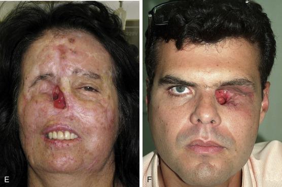 Facial Disfigurement In 5