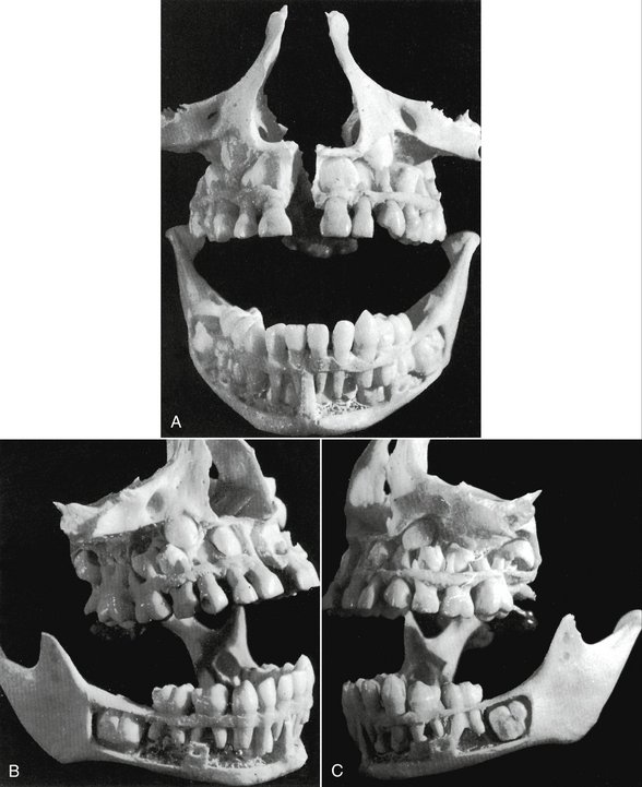 3 The Primary Deciduous Teeth Pocket Dentistry