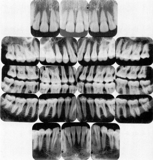 13 Pulp Chambers And Canals Pocket Dentistry