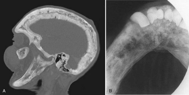 FIGURE 16-22 Paget disease of bone (osteitis deformans). A, Sagittal ...