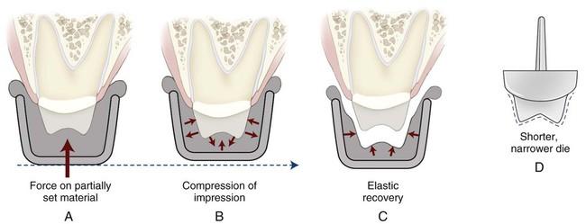 8 Impression Materials Pocket Dentistry