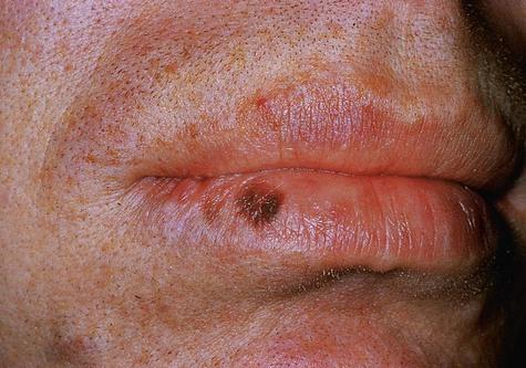 The labial melanotic macule - ScienceDirect