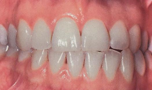 6 Gingival Diseases Pocket Dentistry