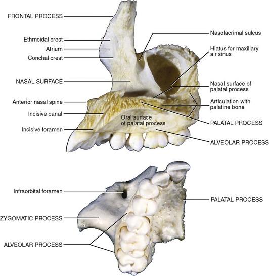 Maxillary Bone 10: Applied Surgical A...