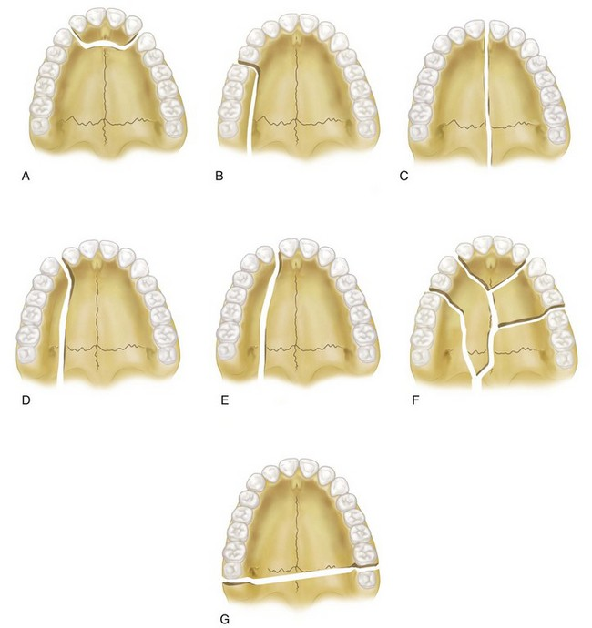 Capsular And Joint Architecture further The Anterior Point Of Reference moreover Diagnostic Records besides 3858934 as well 17 Diagnosis And Treatment Of Midface Fractures. on transverse plane