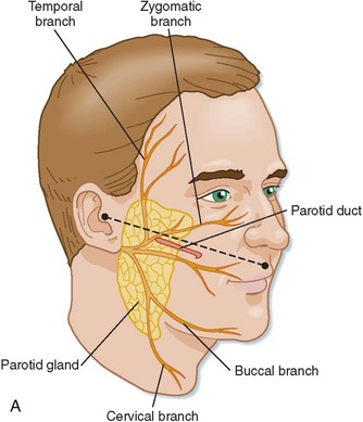 24: Diagnosis and Management of Traumatic Salivary Gland Injuries ...