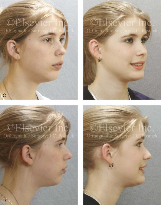 Asymmetrical Face Surgery Before And After