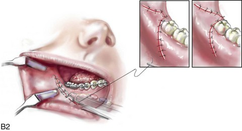 16: Complications Associated with Orthognathic Surgery