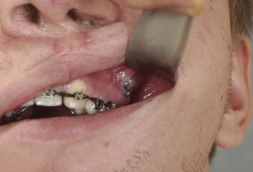 16: Complications Associated with Orthognathic Surgery | Pocket ...