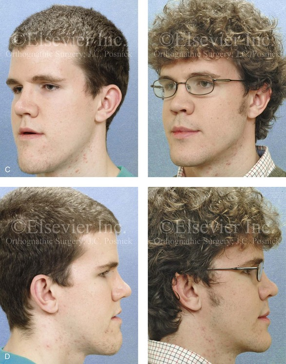 17: Malocclusion after Orthodontics and Orthognathic ...