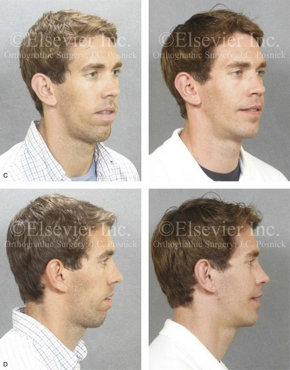 Malocclusion After Orthodontics And Orthognathic Surgery Prevention And Treatment Pitfalls