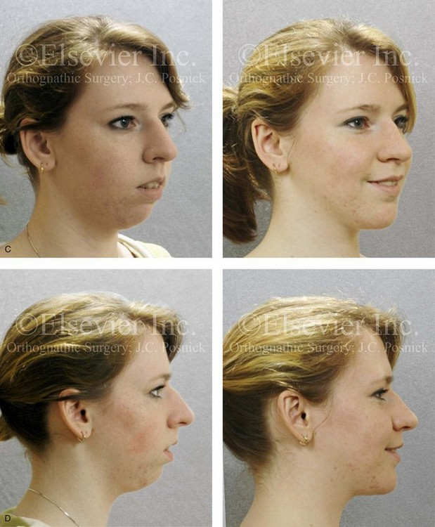 21: Long Face Growth Patterns: Maxillary Vertical Excess ...