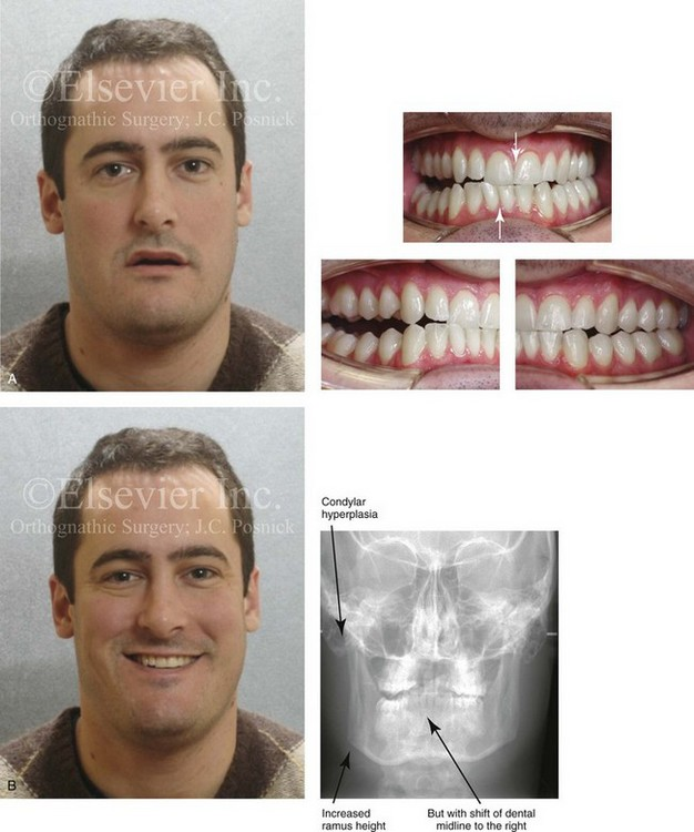 22: Asymmetric Mandibular Excess Growth Patterns | Pocket