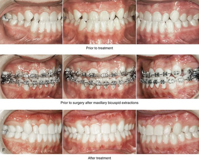 29: Binder Syndrome: Evaluation and Treatment | Pocket Dentistry