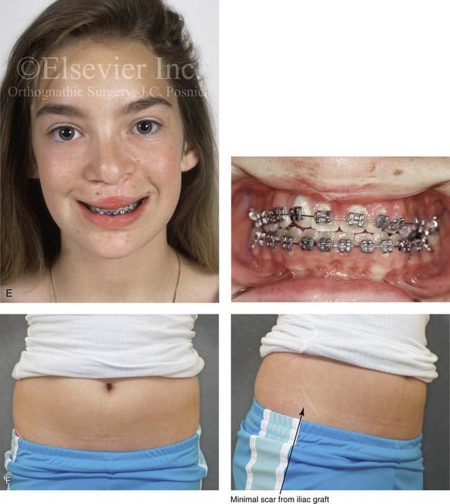 33 Cleft Orthognathic Surgery The Bilateral Cleft Lip