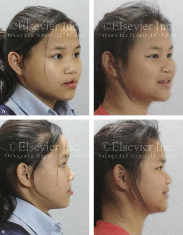 cleft lip student essay A cleft lip can range from a little notch in the coloured part of the lip to a complete separation of the upper lip which can extend up and into the nose a cleft palate is a gap in the roof of the mouth.