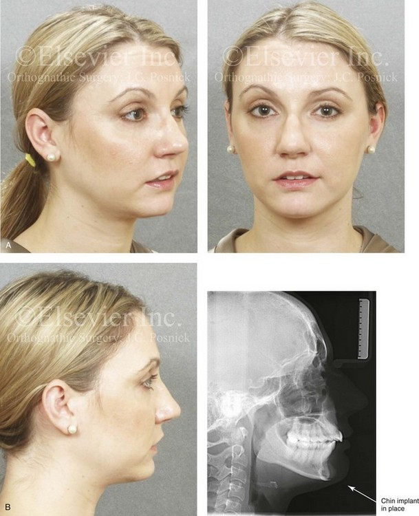 37: Aesthetic Alteration of the Chin: Evaluation and Surgery