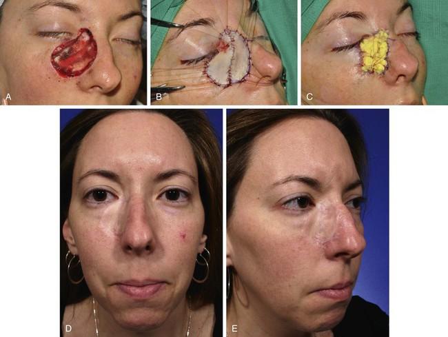 how to create a skin graft