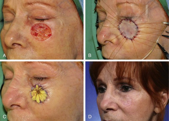 Healing and Complications of Skin Grafts - HowStuffWorks