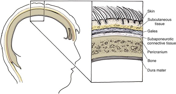 24: Reconstruction of the Scalp | Pocket Dentistry