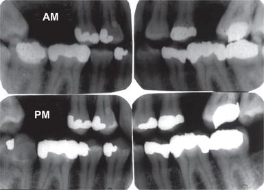 21 Forensic Odontology Pocket Dentistry