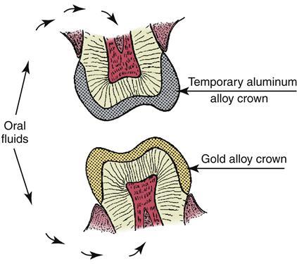 2 Properties Of Materials Pocket Dentistry