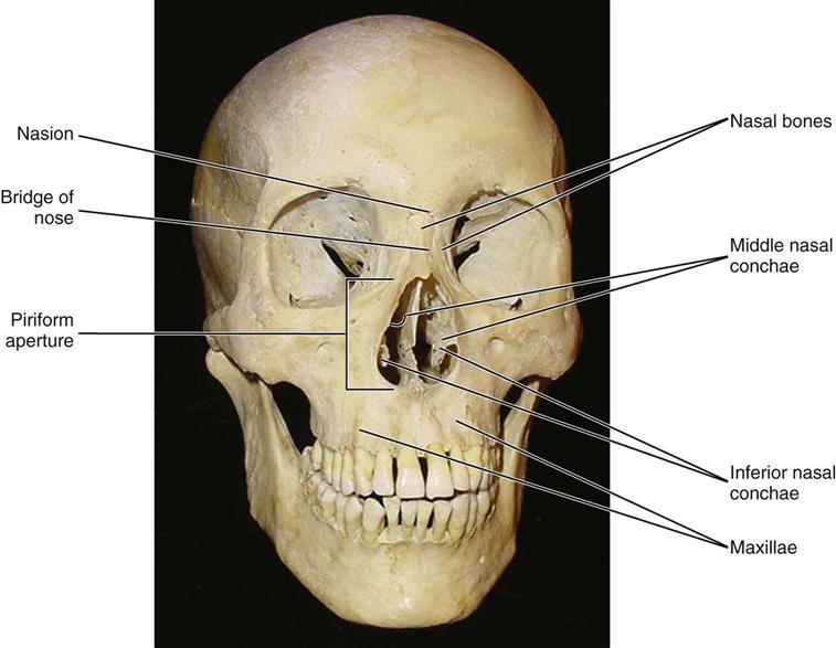 Pyriform Aperture Stenosis Piriform Aperture