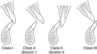 class 1 incisor relationship