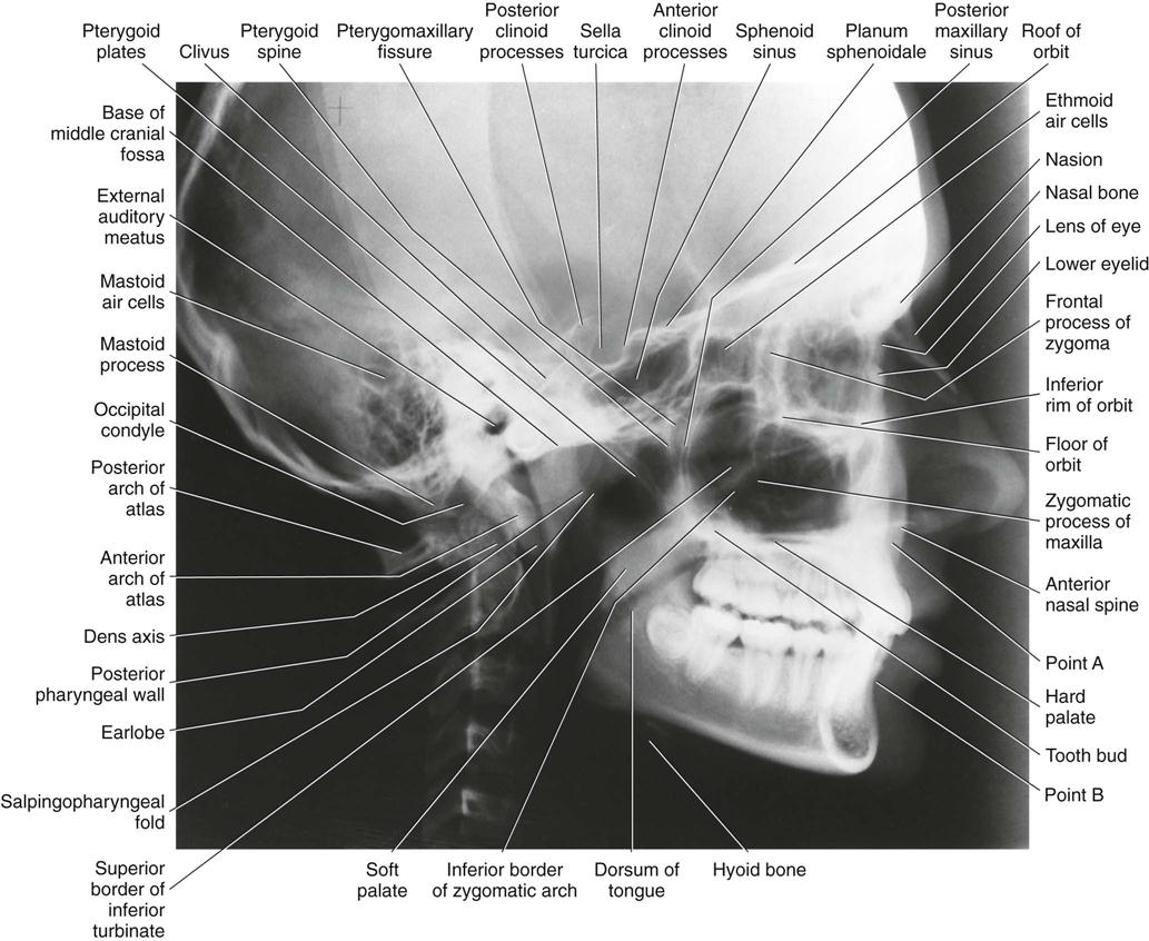 9 Extraoral Projections And Anatomy Pocket Dentistry