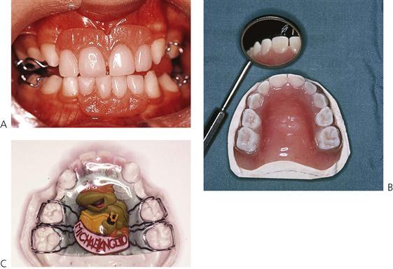 11. Dental anomalies | Pocket Dentistry